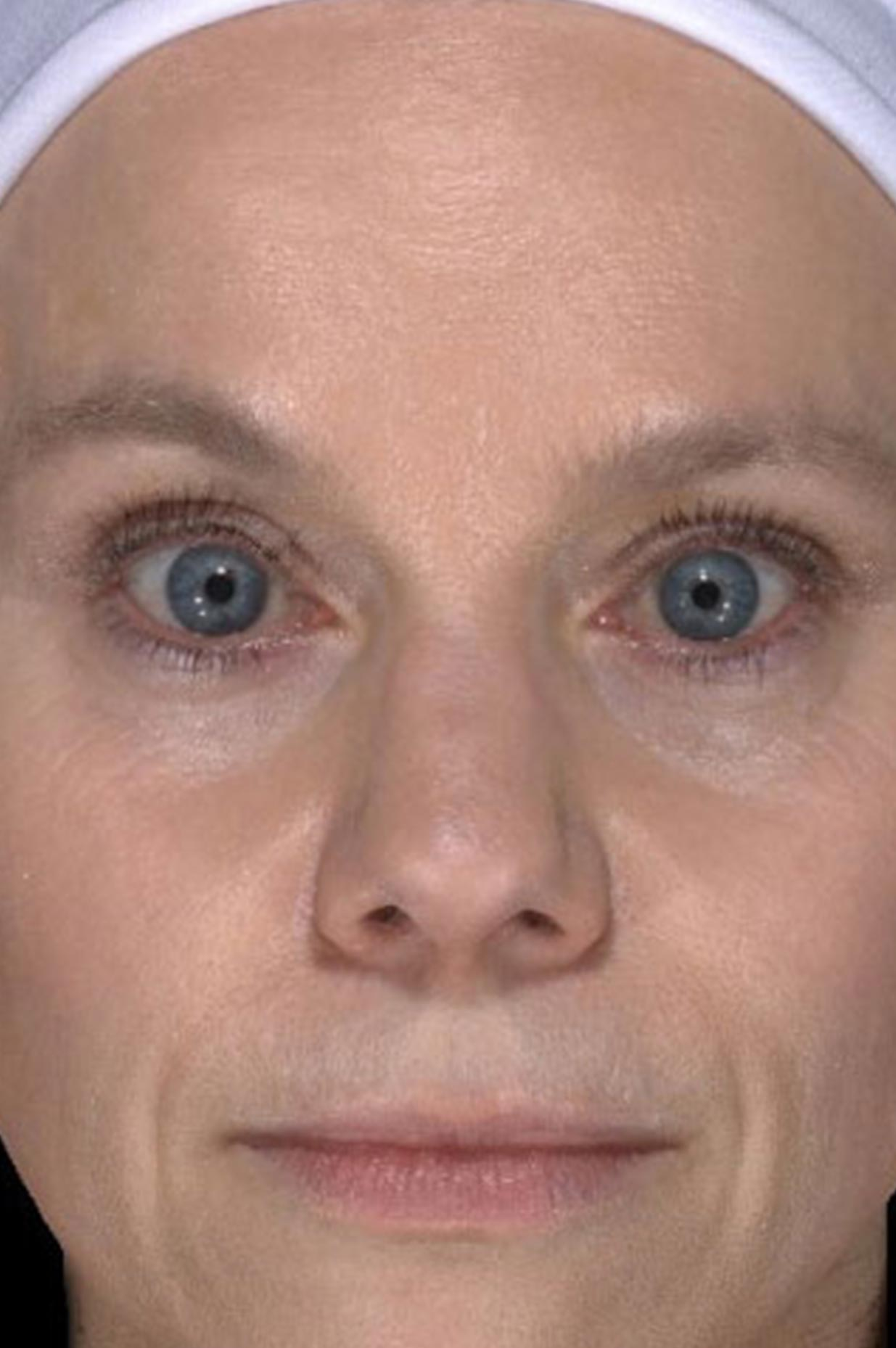 After Botox Injection Treatment
