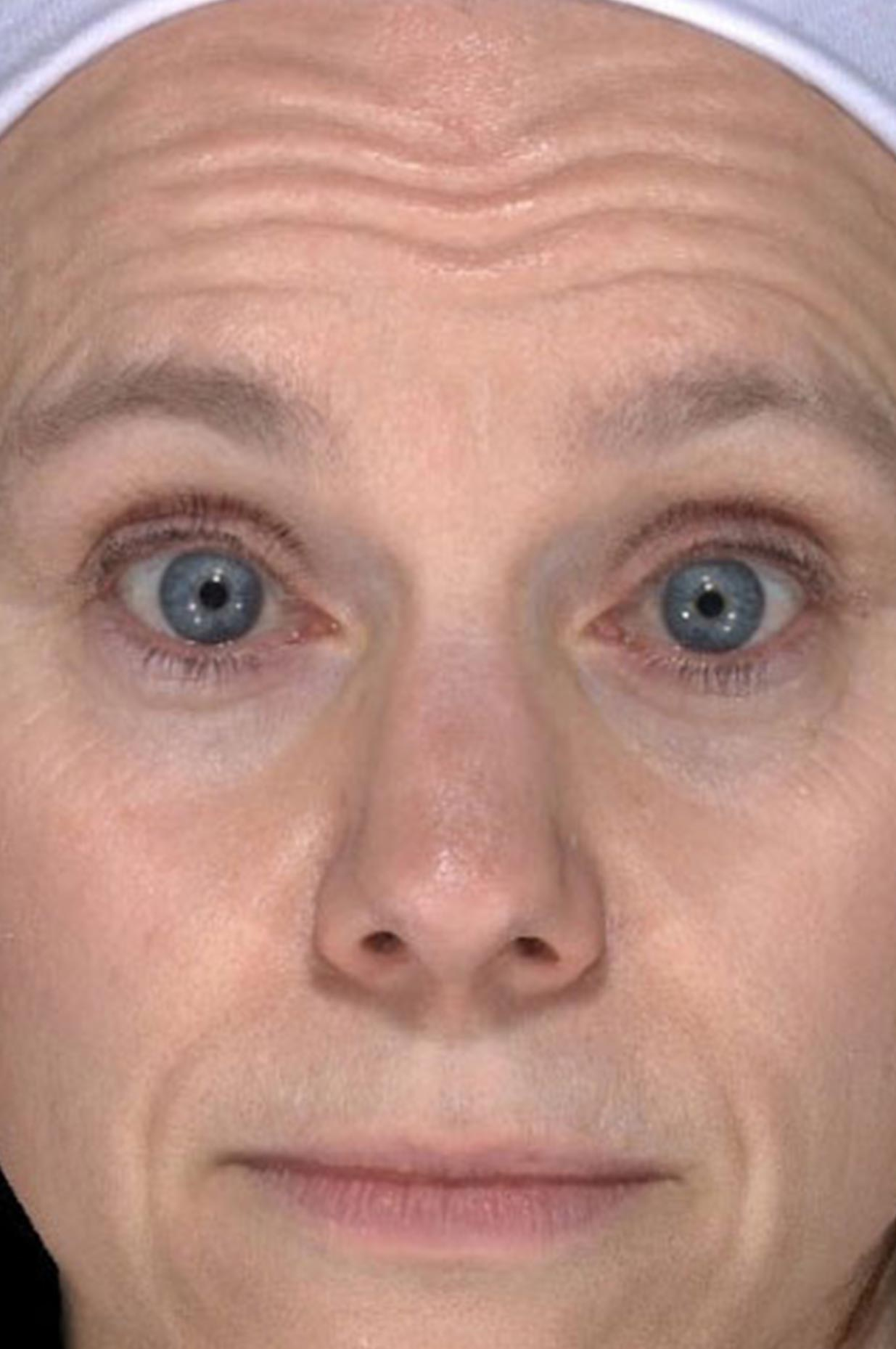 Before Botox Injection Treatment